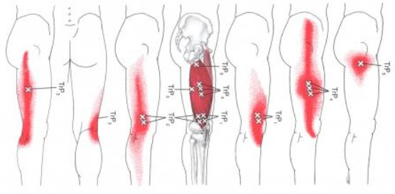 Vastus Lateralis Trigger Points