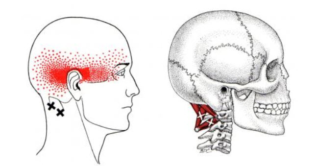 Suboccipital Trigger Points