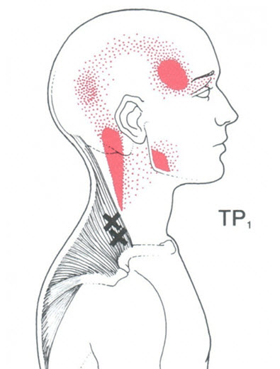 Upper Trap Trigger Points