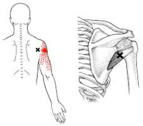 Teres Minor Trigger Point