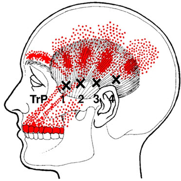 Temporalis Trigger Points